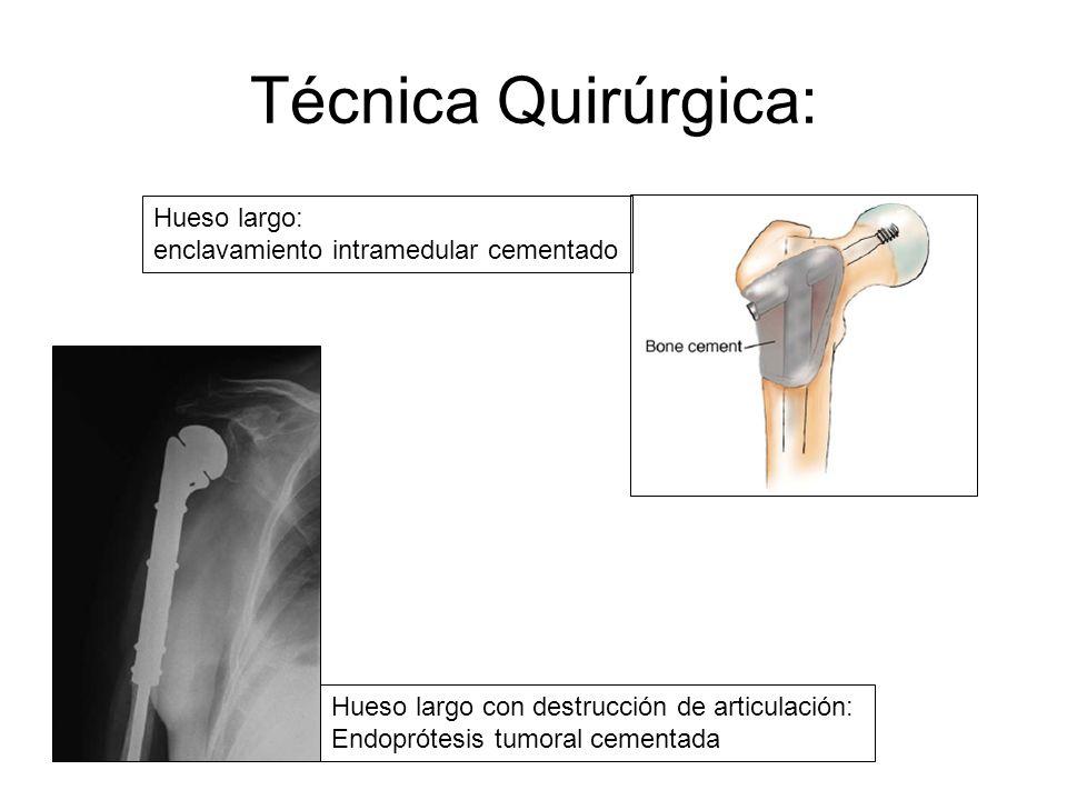 Técnica Quirúrgica: Hueso largo: enclavamiento intramedular cementado