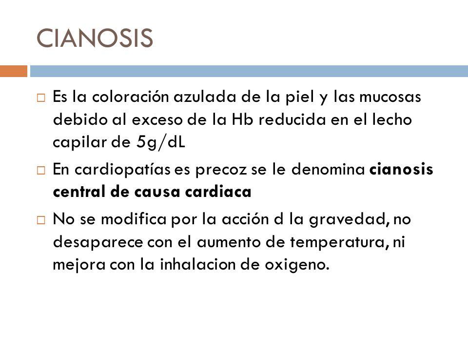 CIANOSIS Es la coloración azulada de la piel y las mucosas debido al exceso de la Hb reducida en el lecho capilar de 5g/dL.