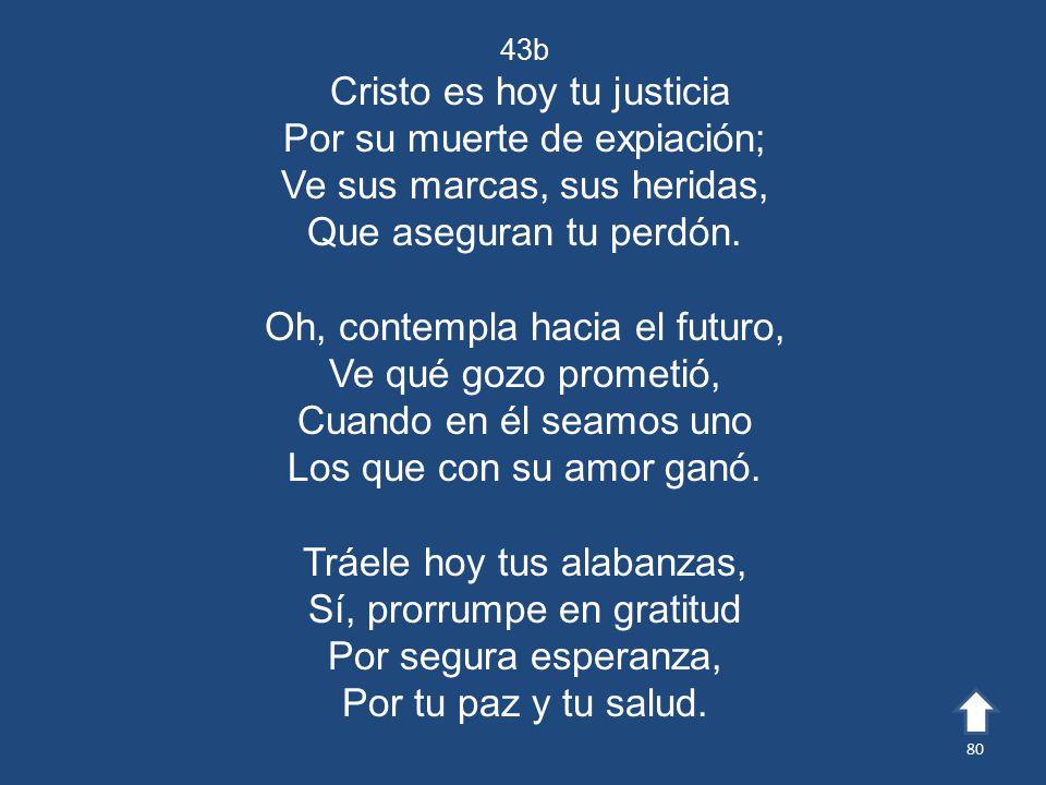 Cristo es hoy tu justicia Por su muerte de expiación;