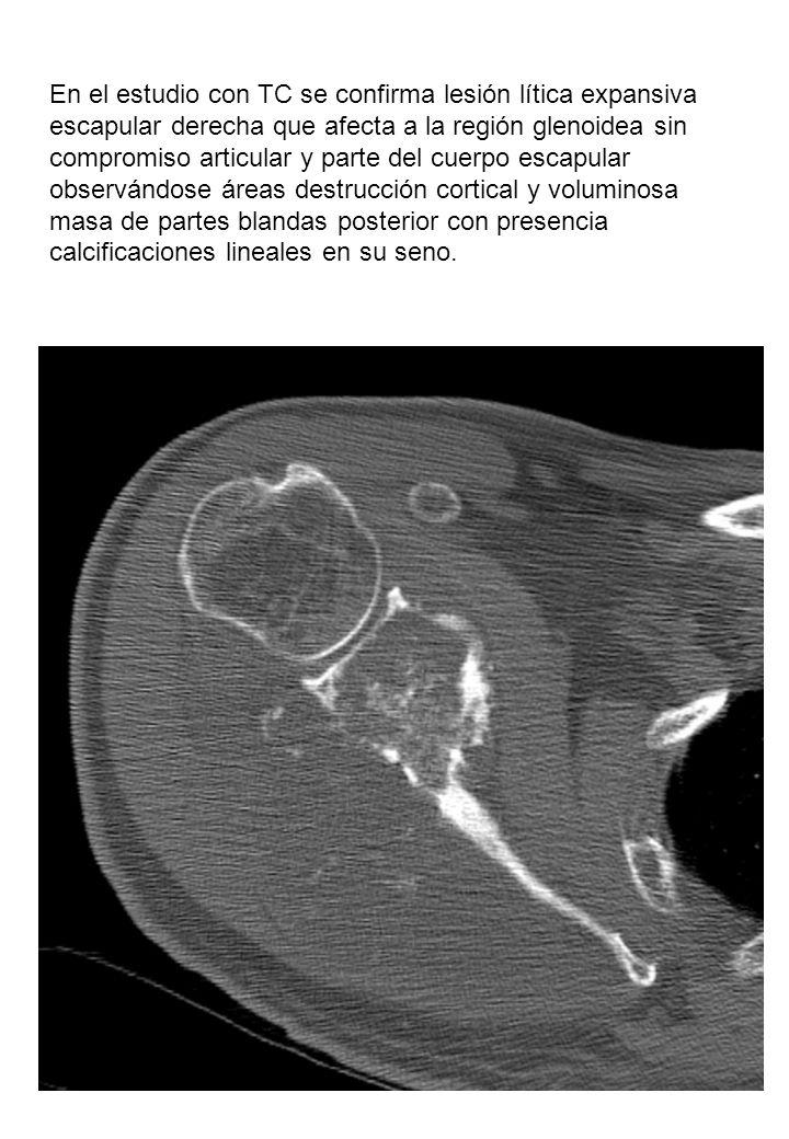 En el estudio con TC se confirma lesión lítica expansiva escapular derecha que afecta a la región glenoidea sin compromiso articular y parte del cuerpo escapular observándose áreas destrucción cortical y voluminosa masa de partes blandas posterior con presencia calcificaciones lineales en su seno.