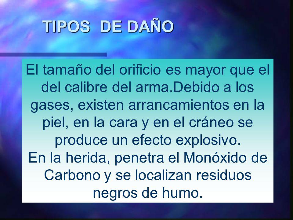 TIPOS DE DAÑO