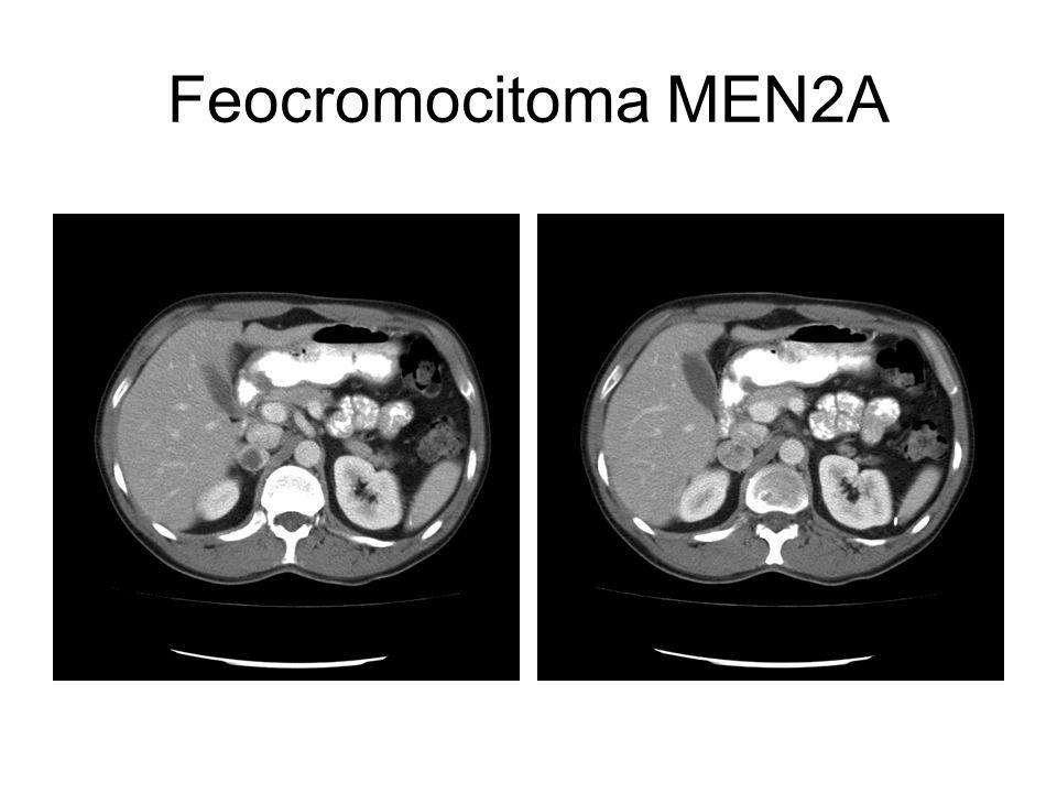Feocromocitoma MEN2A