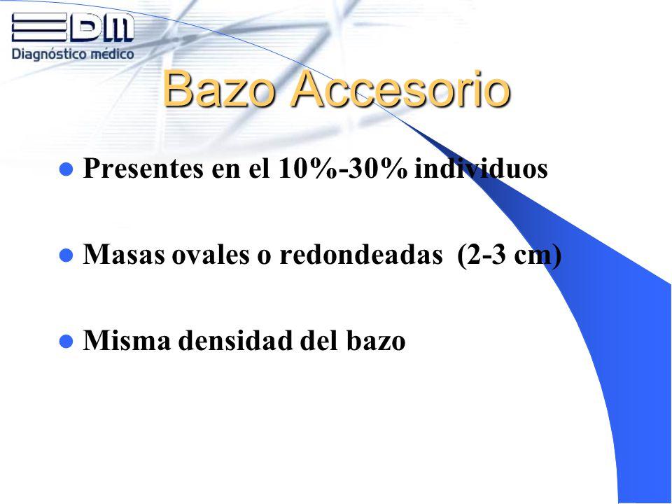 Bazo Accesorio Presentes en el 10%-30% individuos