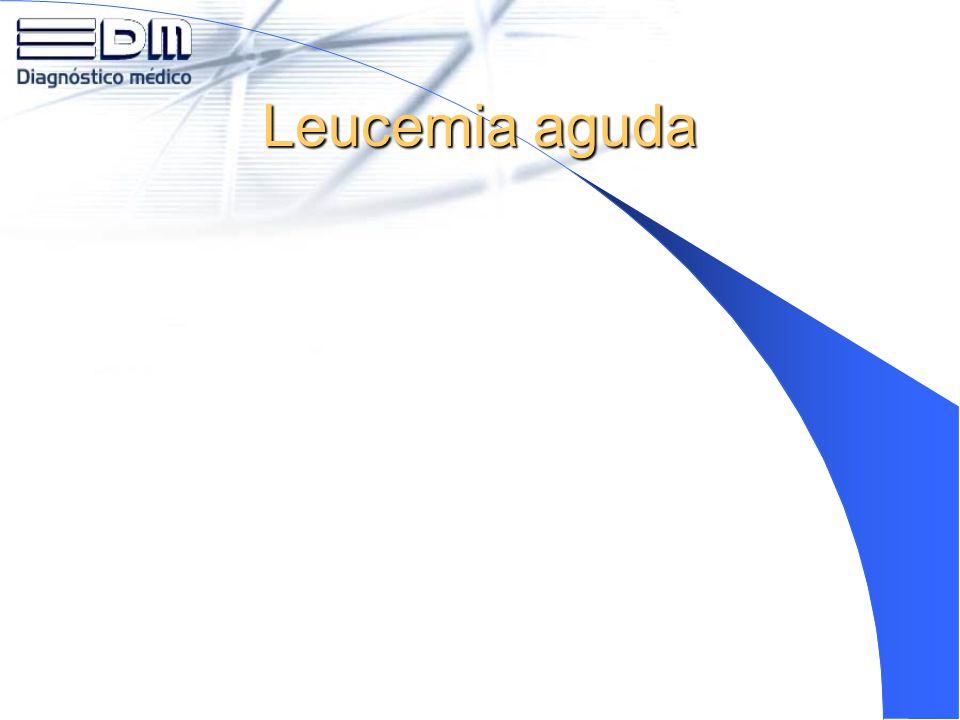 Leucemia aguda