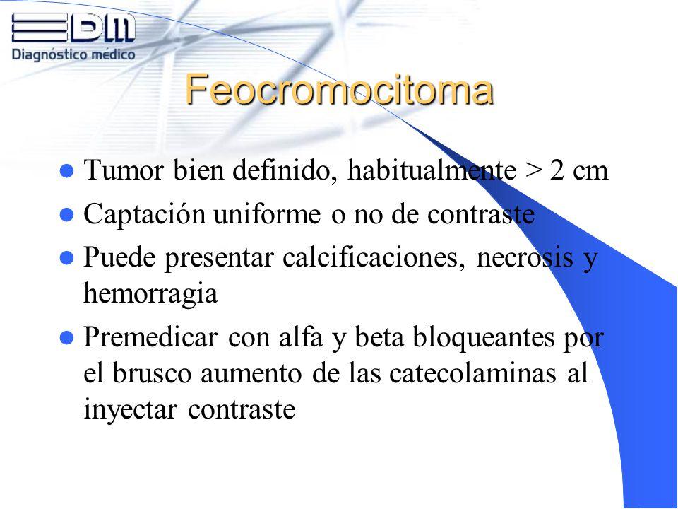 Feocromocitoma Tumor bien definido, habitualmente > 2 cm