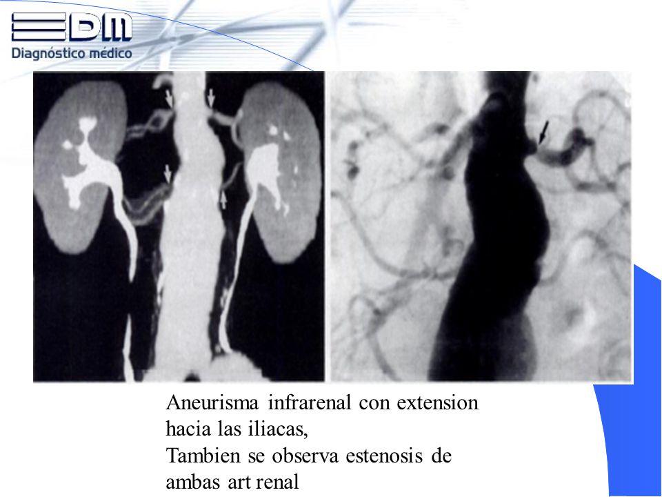 Aneurisma infrarenal con extension hacia las iliacas,