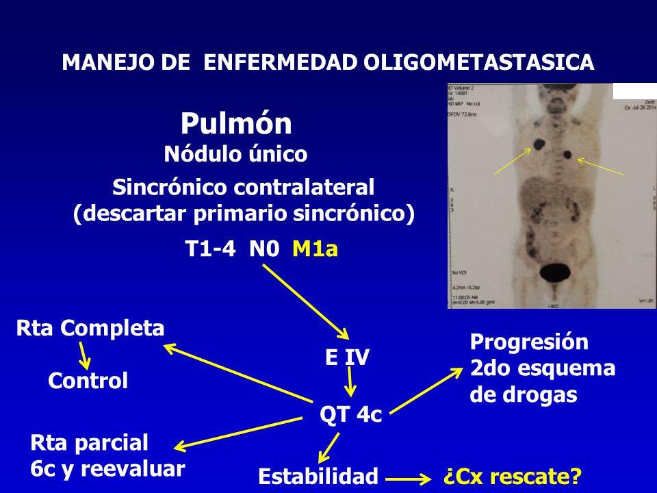 Pulmón MANEJO DE ENFERMEDAD OLIGOMETASTASICA Nódulo único