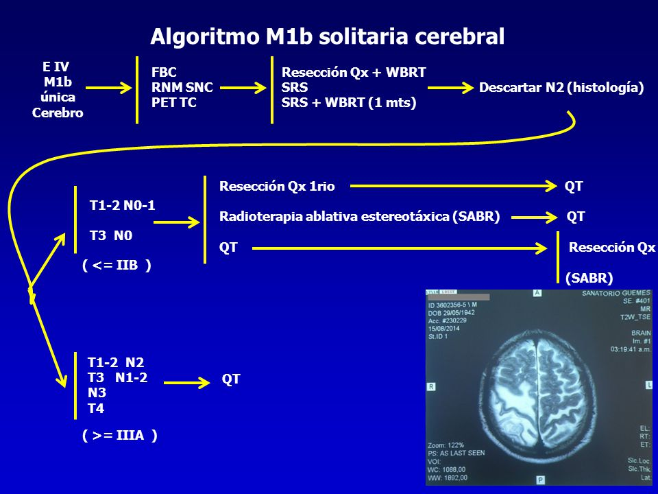 Algoritmo M1b solitaria cerebral