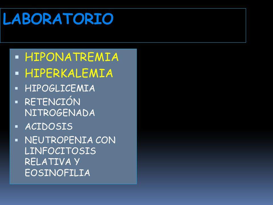 LABORATORIO HIPONATREMIA HIPERKALEMIA HIPOGLICEMIA
