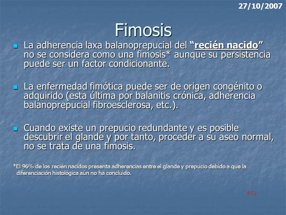 27/10/2007 Fimosis.