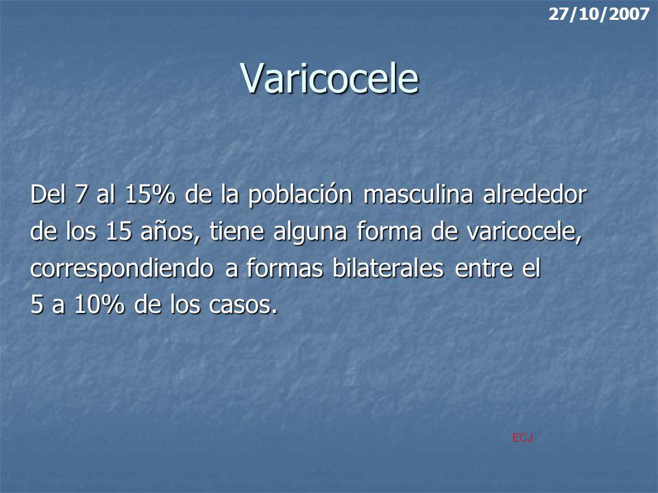 Varicocele Del 7 al 15% de la población masculina alrededor