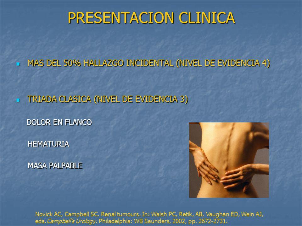 PRESENTACION CLINICA MAS DEL 50% HALLAZGO INCIDENTAL (NIVEL DE EVIDENCIA 4) TRIADA CLASICA (NIVEL DE EVIDENCIA 3)