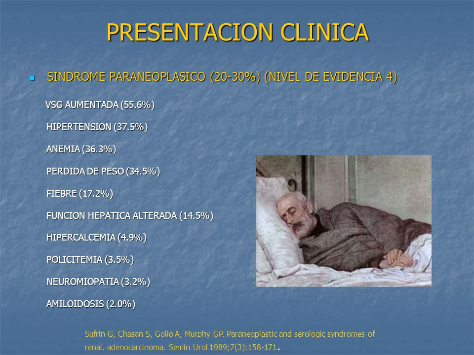 PRESENTACION CLINICA SINDROME PARANEOPLASICO (20-30%) (NIVEL DE EVIDENCIA 4) VSG AUMENTADA (55.6%)