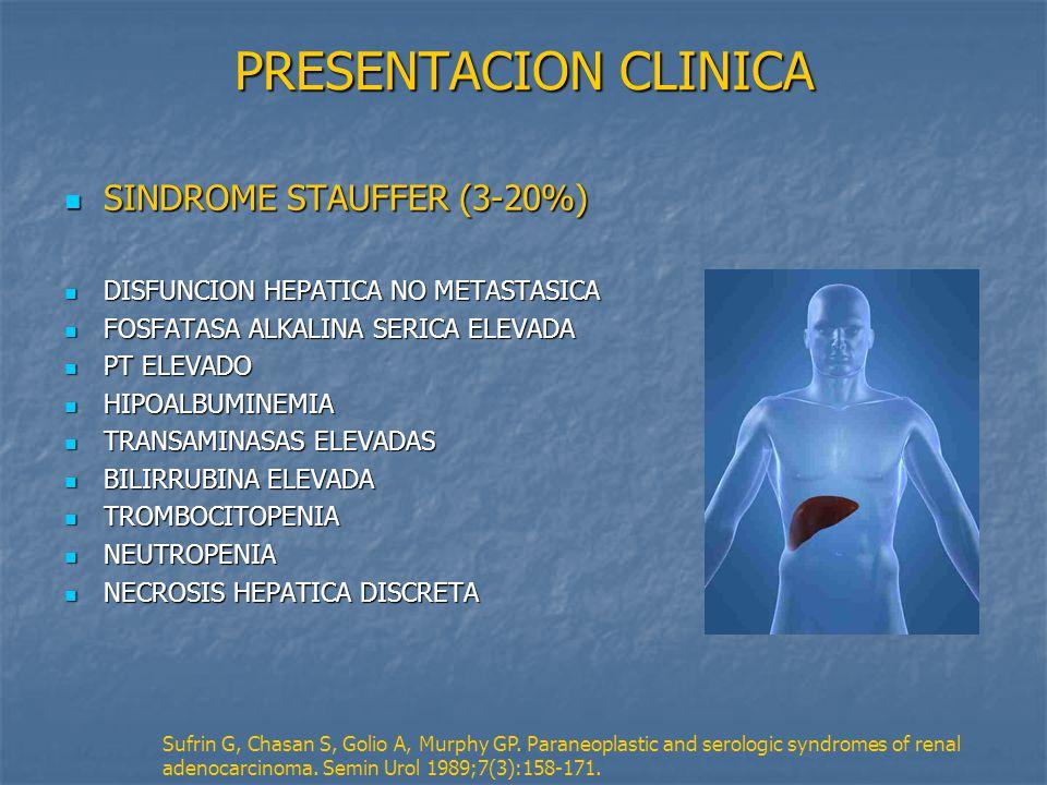 PRESENTACION CLINICA SINDROME STAUFFER (3-20%)