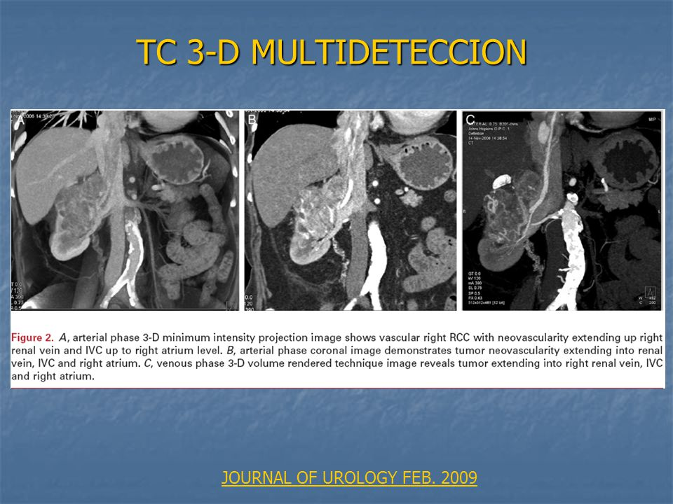 TC 3-D MULTIDETECCION JOURNAL OF UROLOGY FEB. 2009