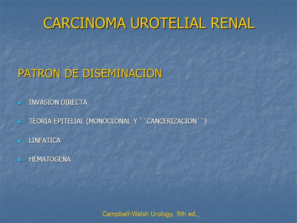 CARCINOMA UROTELIAL RENAL