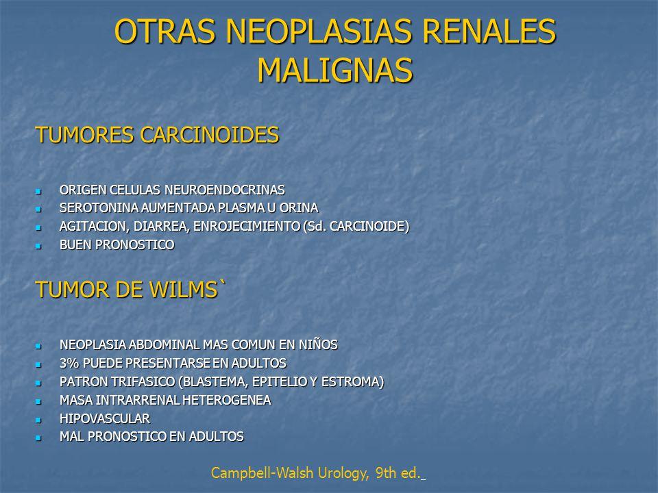 OTRAS NEOPLASIAS RENALES MALIGNAS