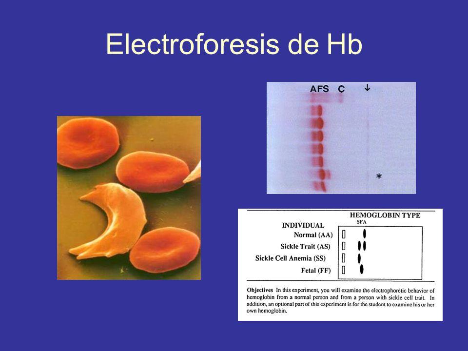 Electroforesis de Hb