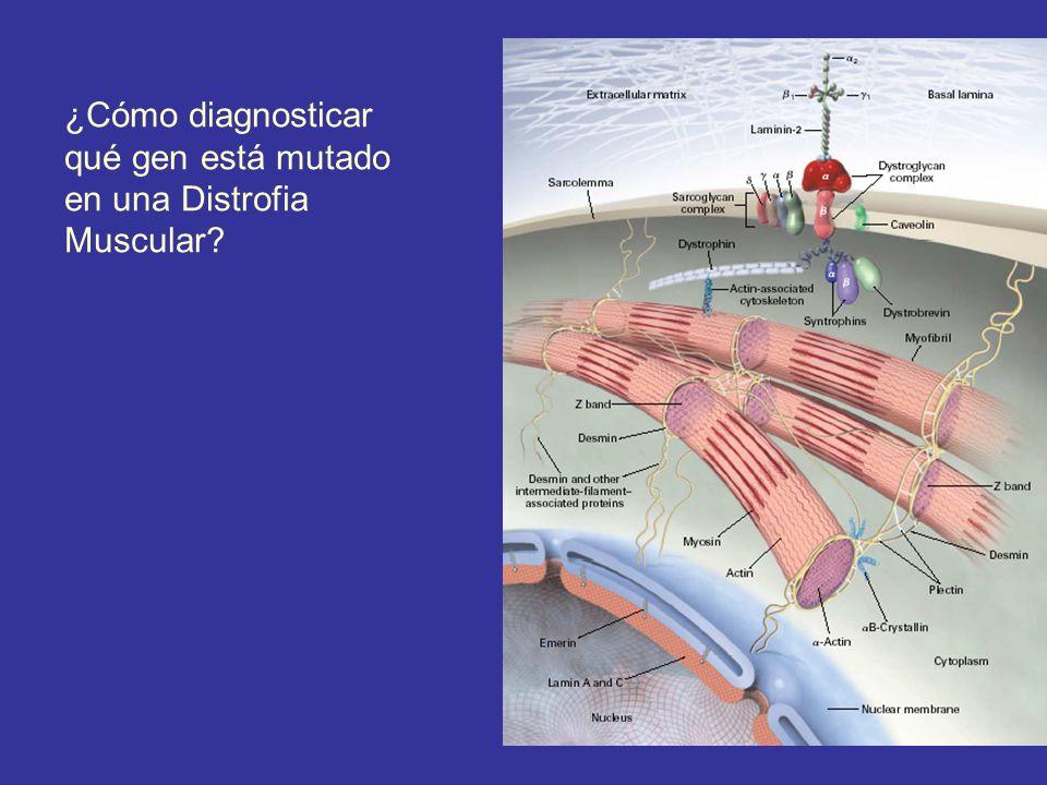 ¿Cómo diagnosticar qué gen está mutado en una Distrofia Muscular