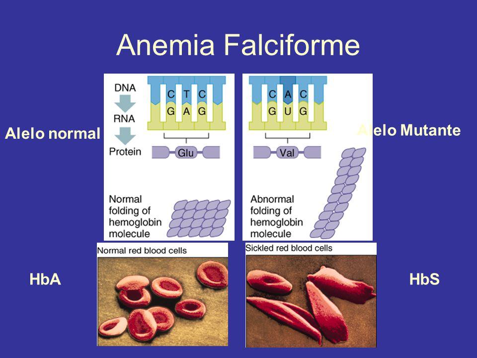 Anemia Falciforme Alelo normal Alelo Mutante HbA HbS