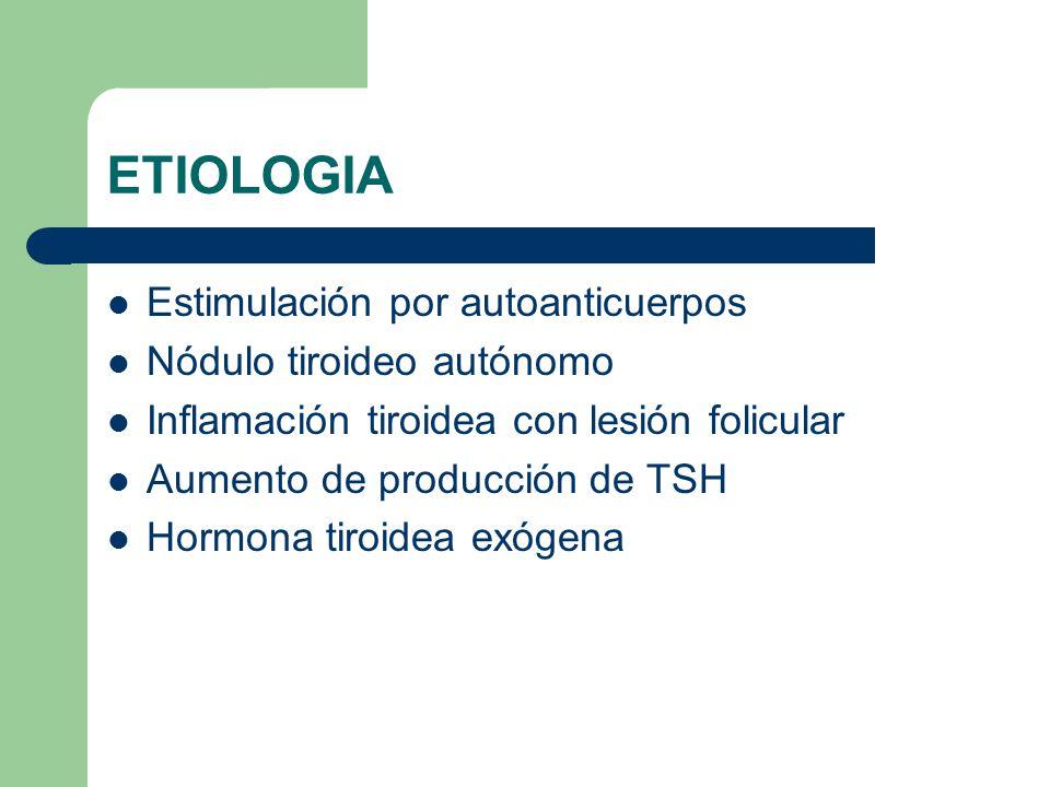 ETIOLOGIA Estimulación por autoanticuerpos Nódulo tiroideo autónomo