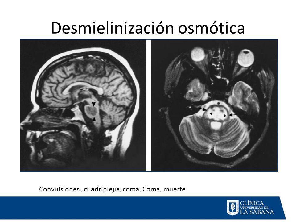 Desmielinización osmótica