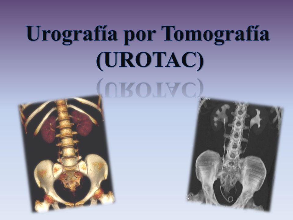Urografía por Tomografía