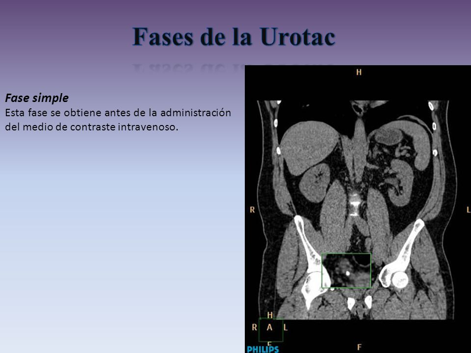 Fases de la Urotac Fase simple