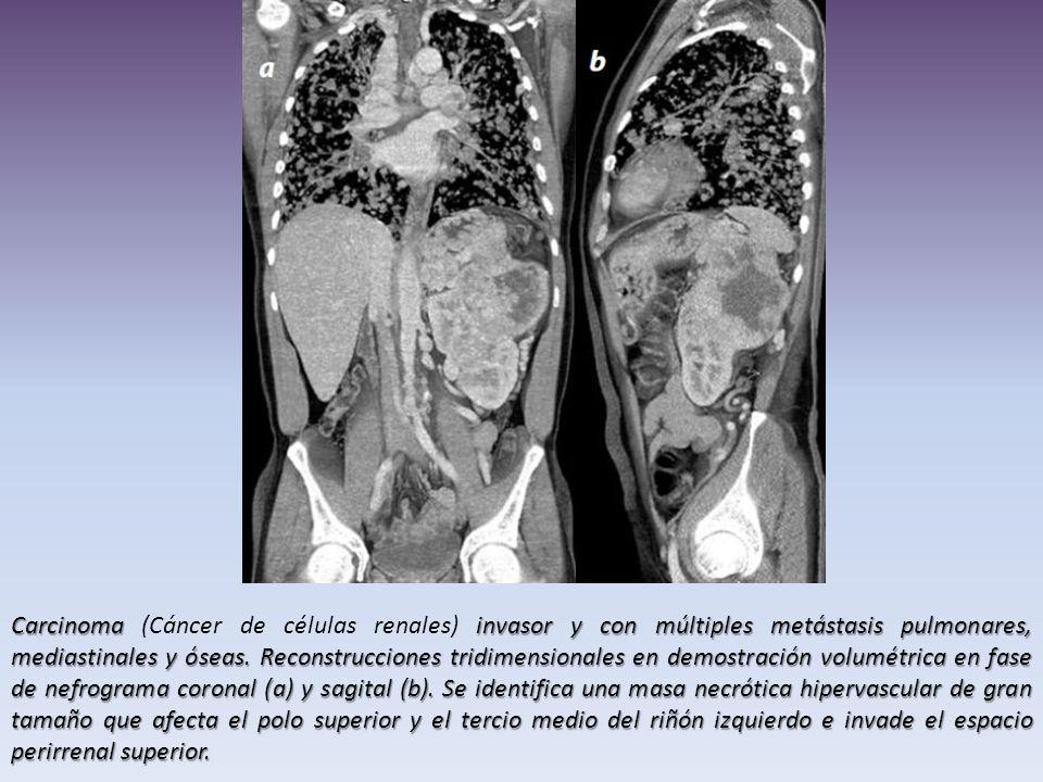 Carcinoma (Cáncer de células renales) invasor y con múltiples metástasis pulmonares, mediastinales y óseas.
