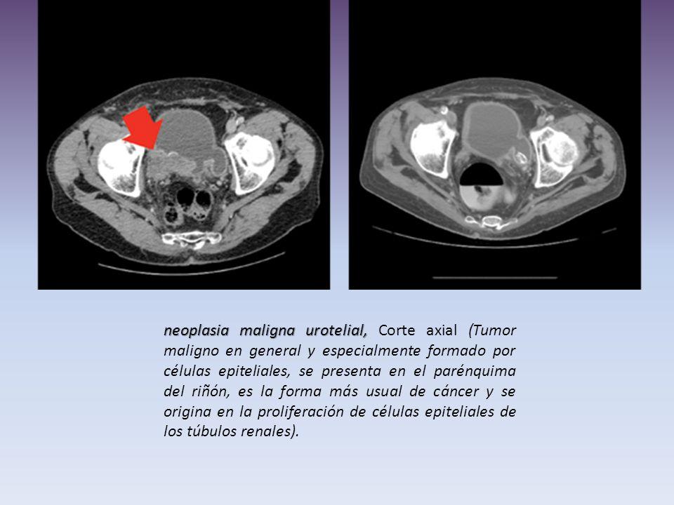 neoplasia maligna urotelial, Corte axial (Tumor maligno en general y especialmente formado por células epiteliales, se presenta en el parénquima del riñón, es la forma más usual de cáncer y se origina en la proliferación de células epiteliales de los túbulos renales).
