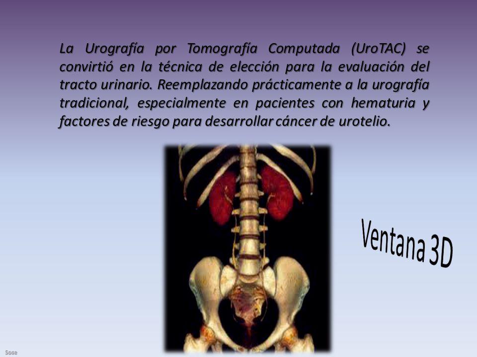 La Urografía por Tomografía Computada (UroTAC) se convirtió en la técnica de elección para la evaluación del tracto urinario. Reemplazando prácticamente a la urografía tradicional, especialmente en pacientes con hematuria y factores de riesgo para desarrollar cáncer de urotelio.