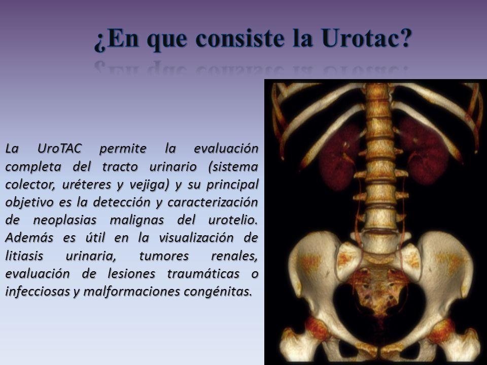 ¿En que consiste la Urotac