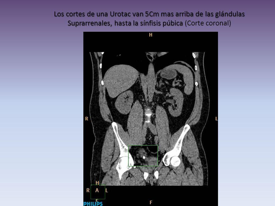 Los cortes de una Urotac van 5Cm mas arriba de las glándulas