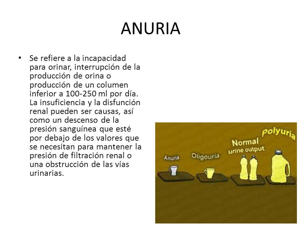 ANURIA