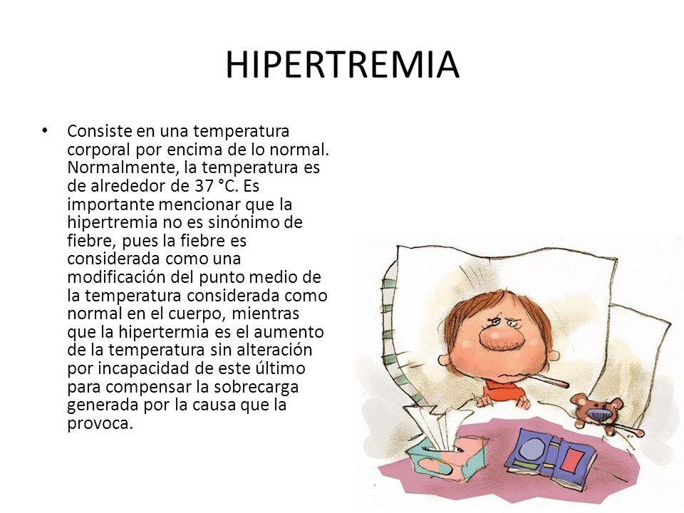HIPERTREMIA