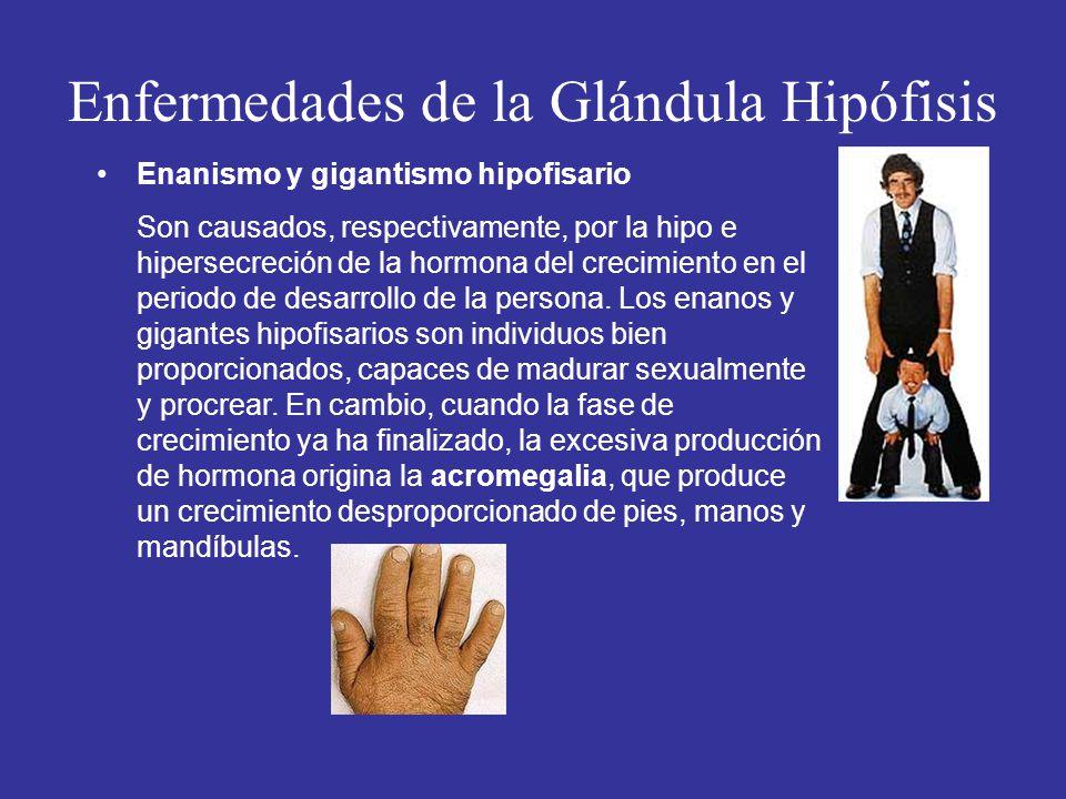 Enfermedades de la Glándula Hipófisis