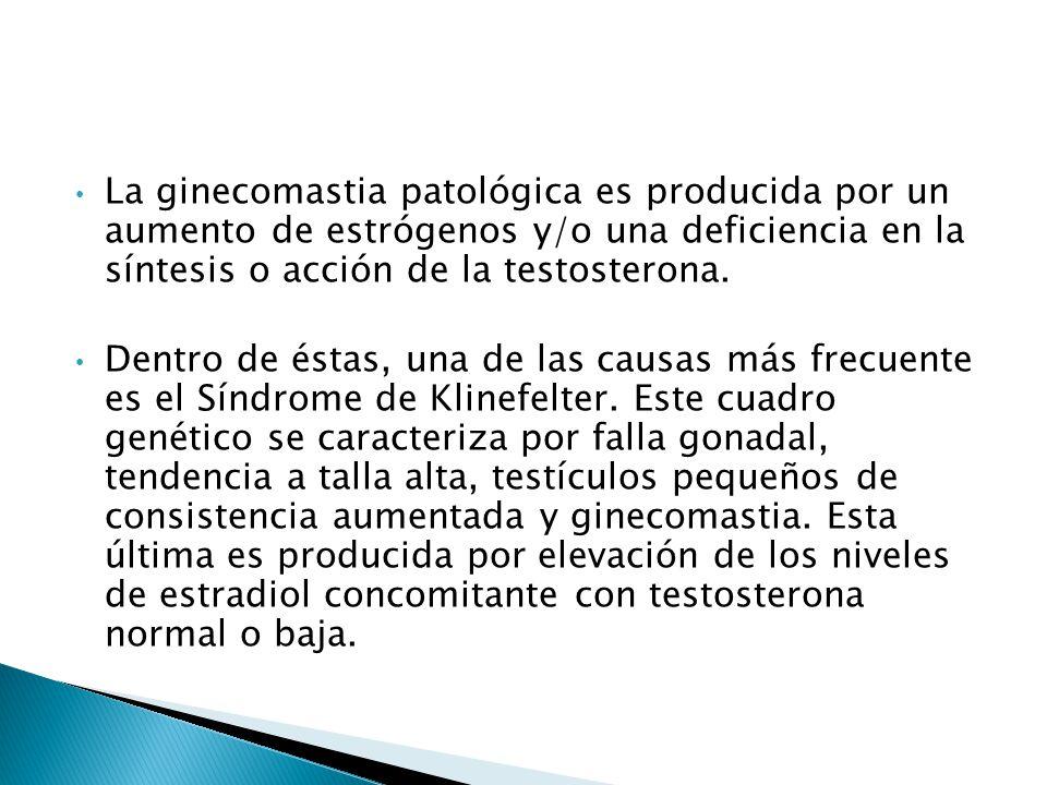 La ginecomastia patológica es producida por un aumento de estrógenos y/o una deficiencia en la síntesis o acción de la testosterona.