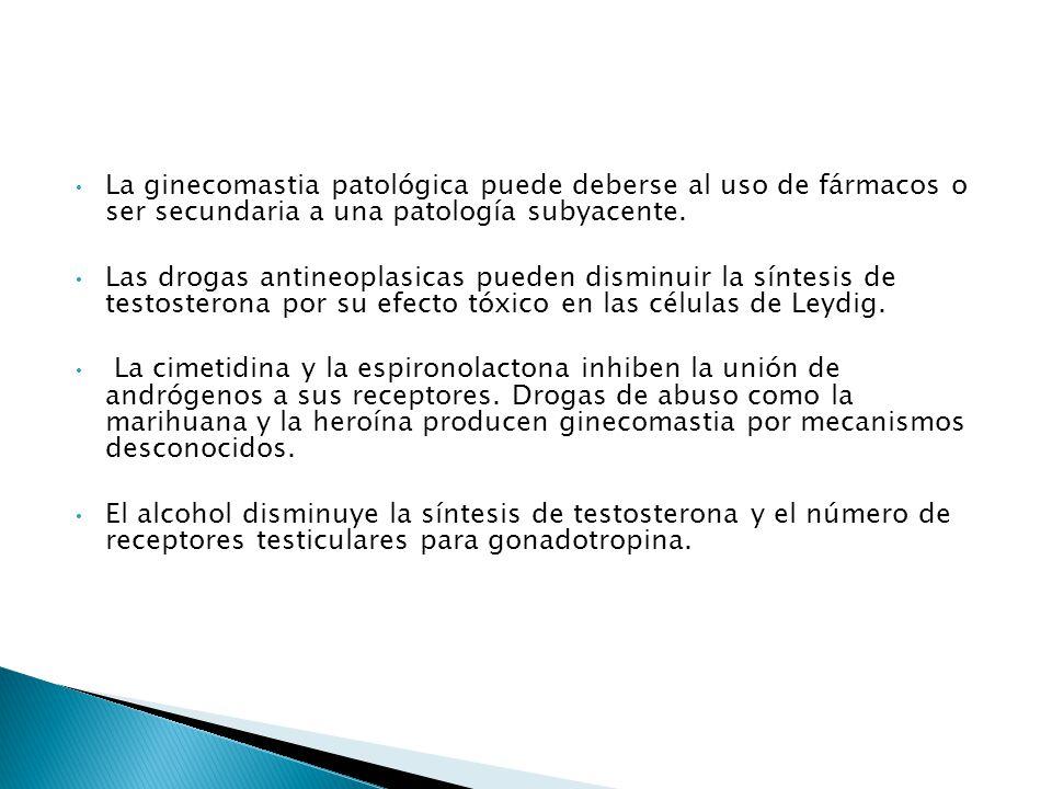 La ginecomastia patológica puede deberse al uso de fármacos o ser secundaria a una patología subyacente.