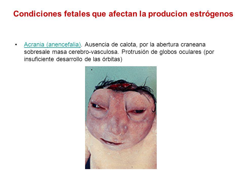 Condiciones fetales que afectan la producion estrógenos