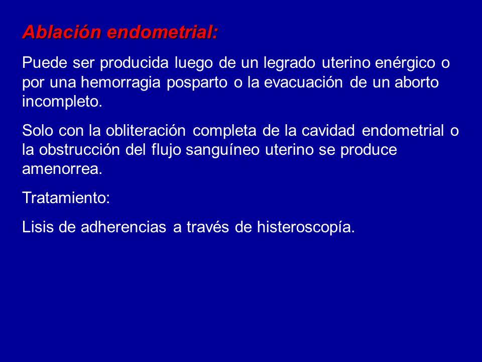 Ablación endometrial: