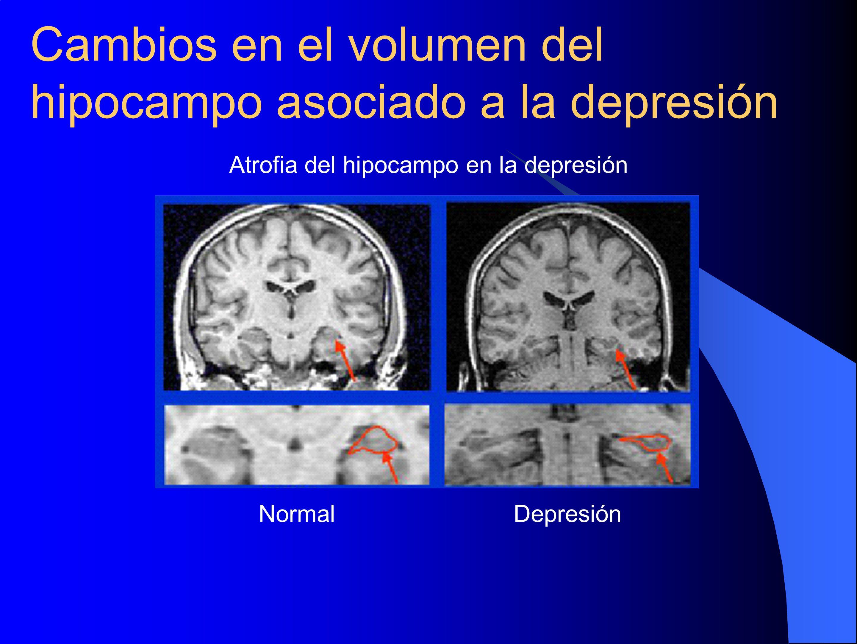 Cambios en el volumen del hipocampo asociado a la depresión