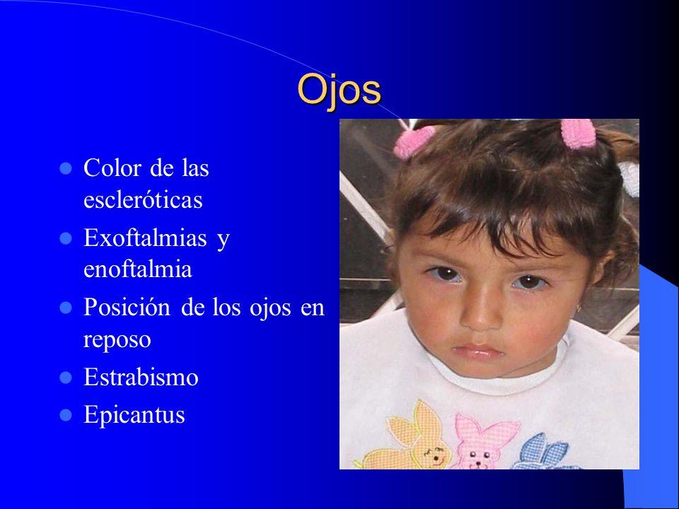 Ojos Color de las escleróticas Exoftalmias y enoftalmia