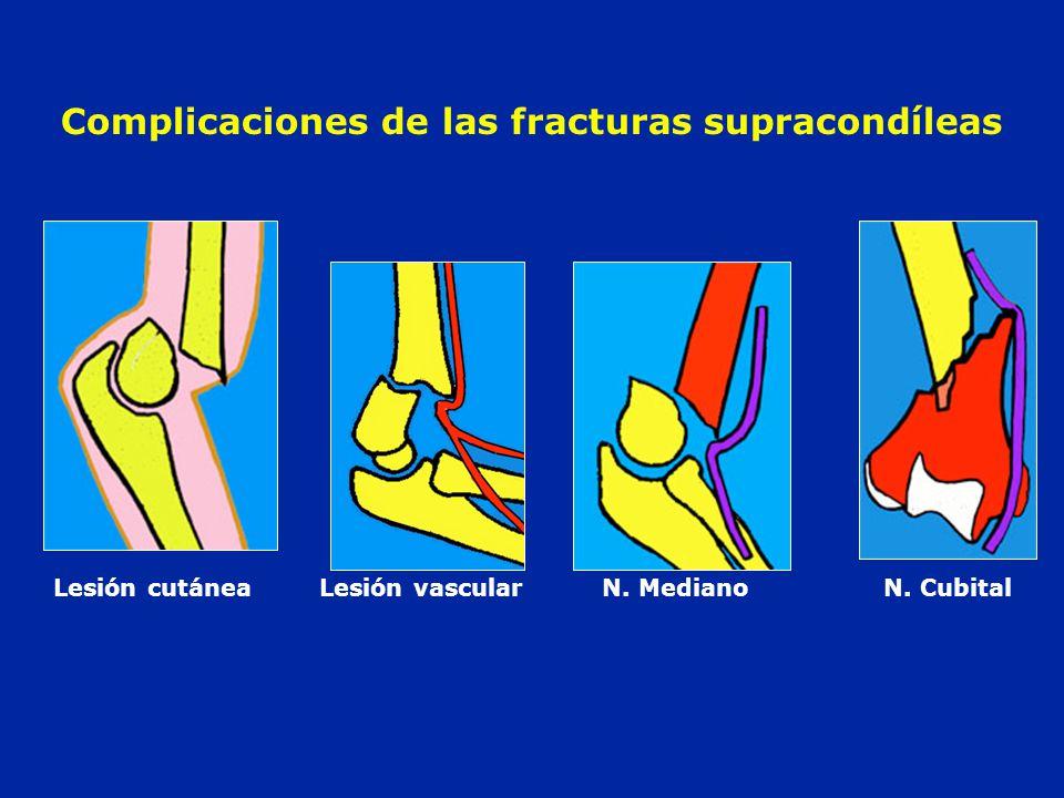 Complicaciones de las fracturas supracondíleas