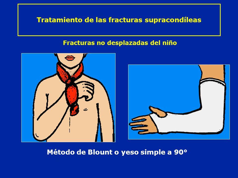 Tratamiento de las fracturas supracondíleas