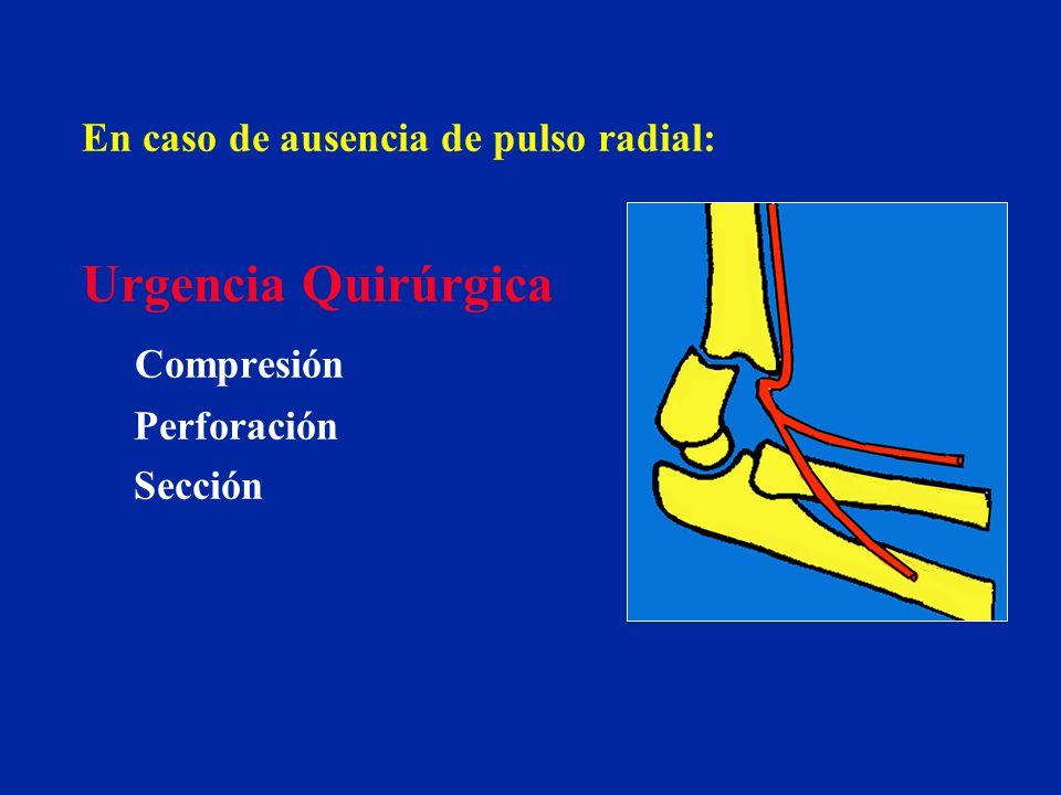 Urgencia Quirúrgica Compresión En caso de ausencia de pulso radial: