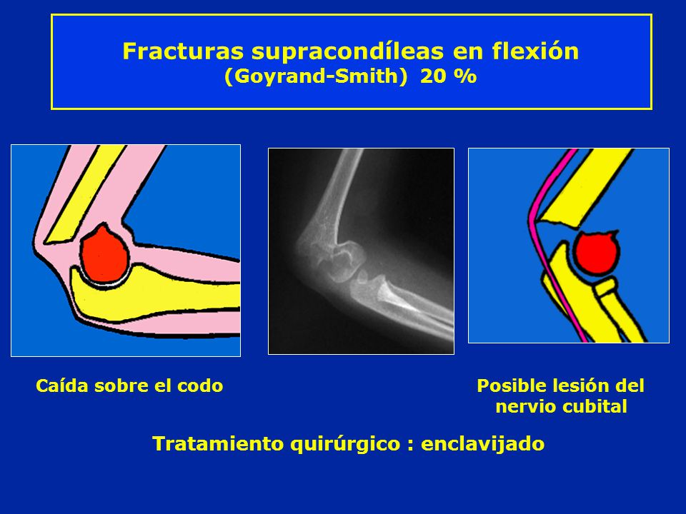 Fracturas supracondíleas en flexión (Goyrand-Smith) 20 %