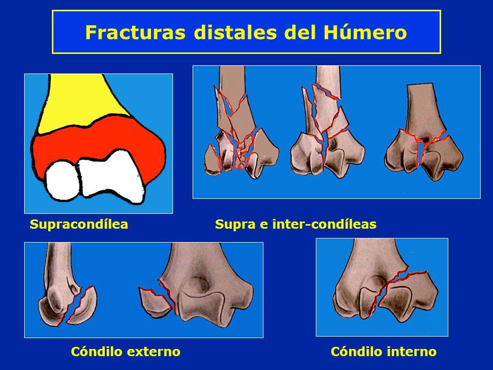 Fracturas distales del Húmero