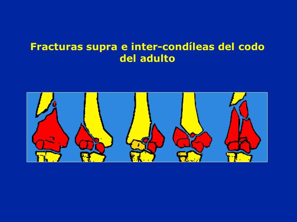 Fracturas supra e inter-condíleas del codo del adulto
