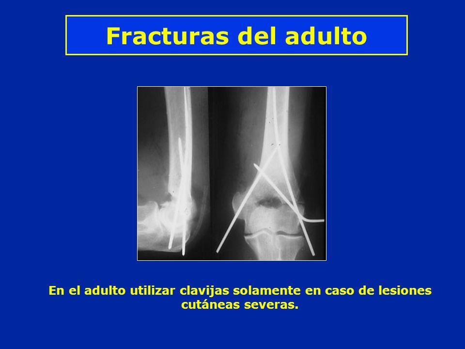 Fracturas del adulto En el adulto utilizar clavijas solamente en caso de lesiones cutáneas severas.
