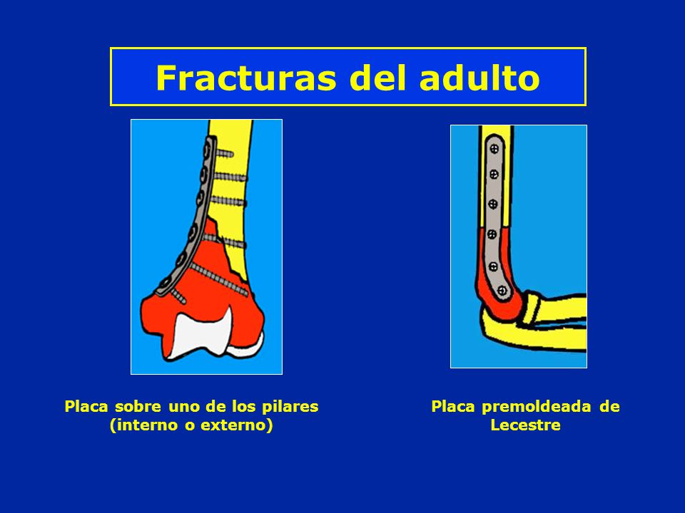 Fracturas del adulto Placa sobre uno de los pilares (interno o externo) Placa premoldeada de Lecestre.